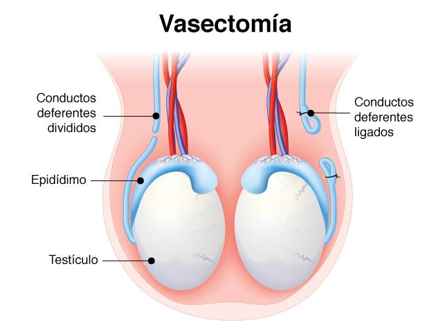 Reversión de la Vasectomía en Guadalajara
