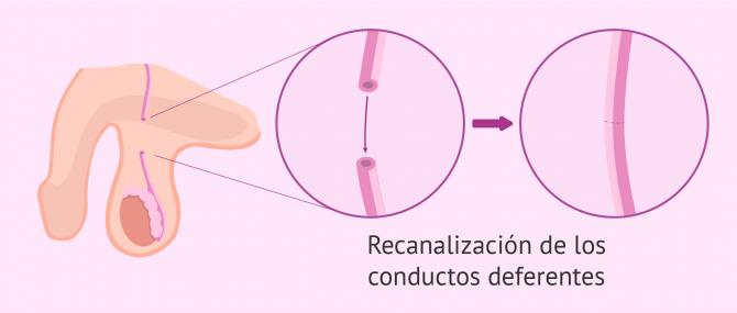 Reversión de vasectomía en Guadalajara